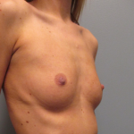 Breast Augmentation Before & After Patient #2431