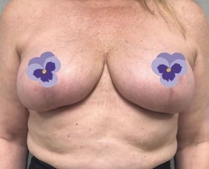 Breast Lift Before & After Patient #2754