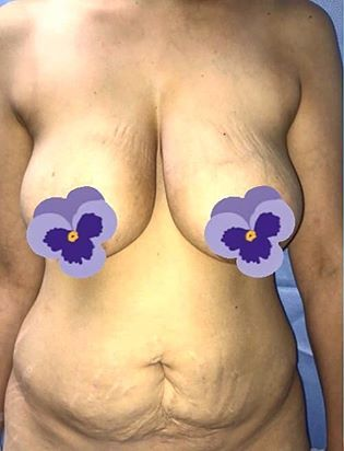 Breast Lift Before & After Patient #2779