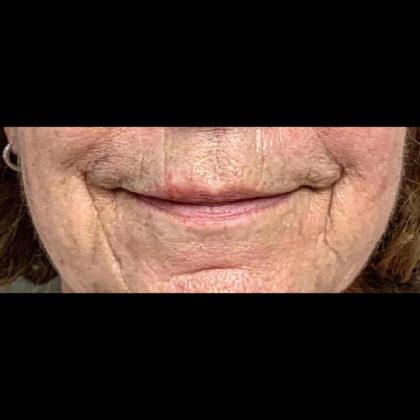 Facial Rejuvenation Before & After Patient #2812