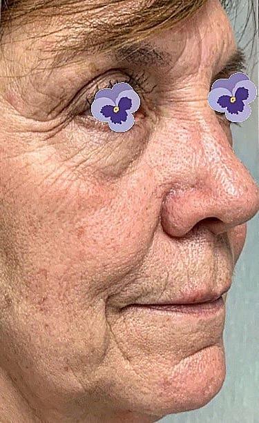 Facial Rejuvenation Before & After Patient #2830