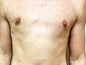 Gynecomastia Treatment Before & After Patient #2798